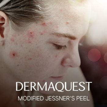 DermaQuest Modified Jessner's Peel / The Equaliser