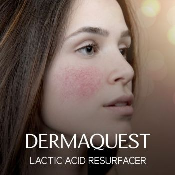 DermaQuest Lactic Acid Resurfacer / Our Treatment for Sensitive Skin