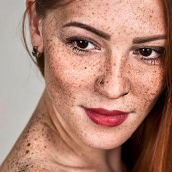 pigmentation laser treatment