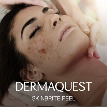 DermaQuest SkinBrite Peel / Brighter Day Peel