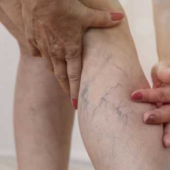 Clearvein / Laser Treatment