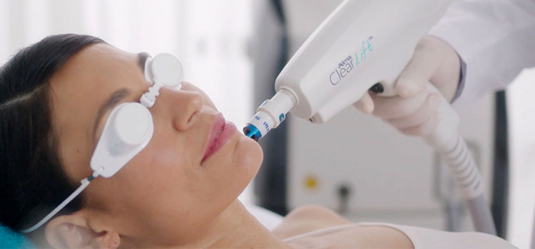laser anti ageing treatment