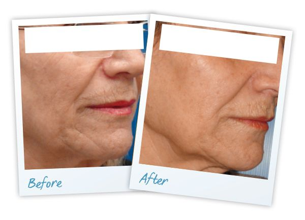 laser anti ageing results