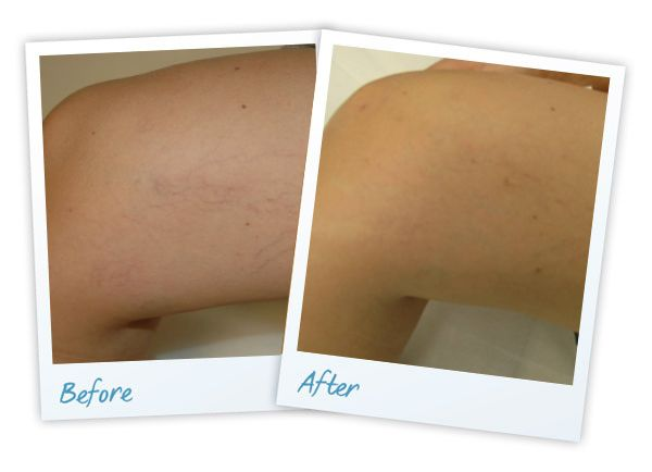 laser vein treatment results